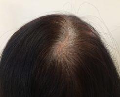 薄毛・白髪・リタッチのイメージ画像